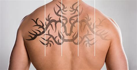 best laser tattoo removal london best studio get best artists