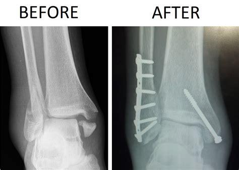 Fractured Patella Orif