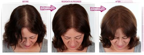 keranique before and after photos keranique regrowth reviews must see keranique reviews