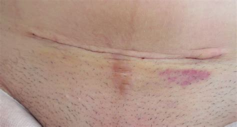 skin infection after c section caesarean scar pictures