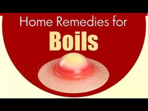 home remedies for boil