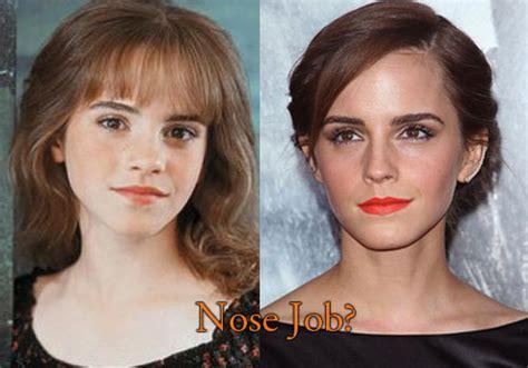 emma watson job emma watson plastic surgery www imgkid com the image