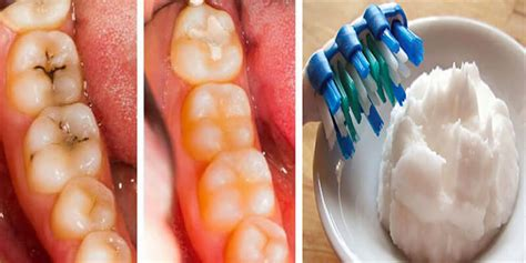 dental testimonials cure tooth decay 5 steps to reverse cavities and heal tooth decay naturally