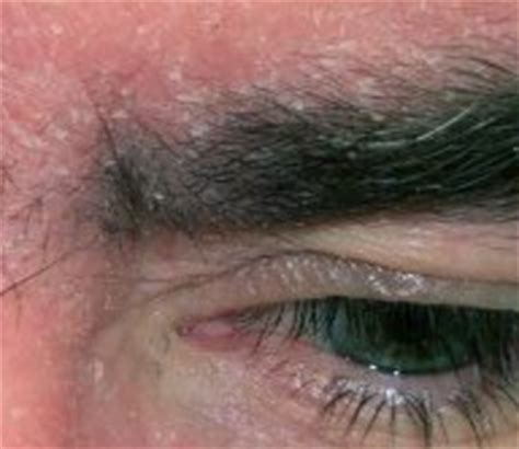 my has skin and dandruff dandruff in eyebrows skin get rid remove naturally home remedies hair loss