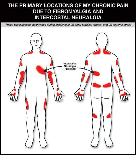 trigger points fibromyalgia diagram fibromyalgia points diagram 28 images the fibro bunny