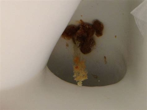 Fungus In Stool Treatment by Candida In Stool On Curezone Image Gallery