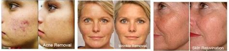 red light therapy bed before and after red light therapy tanning henderson nv las vegas 24