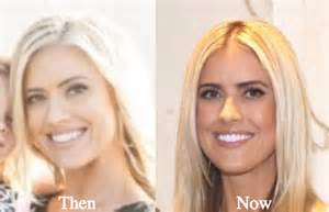 Christina el moussa plastic surgery rumors before and after comparison