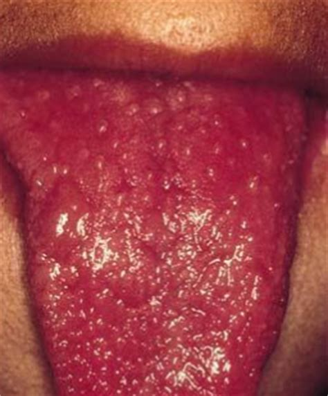 light spots on back red spots on tongue small dots tip back back how to