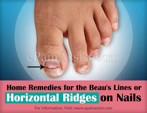 beaus lines how to recognize a beau line fingernail beau s lines or horizontal ridges on nails