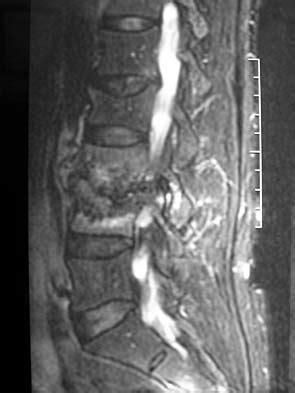 Adult Pyogenic Vertebral Osteomyelitis - Spine - Orthobullets