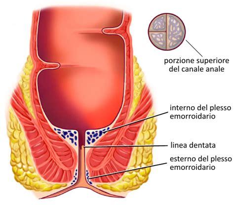 trattamento emorroidi interne emorroidi diagnosi e trattamento