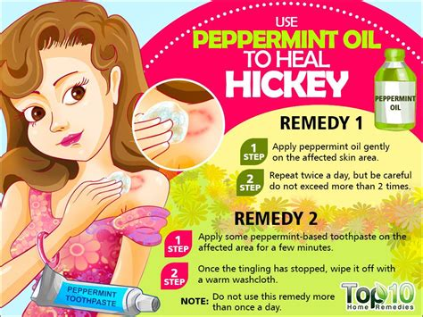how to get rid of hickies fast top 10 home remedies