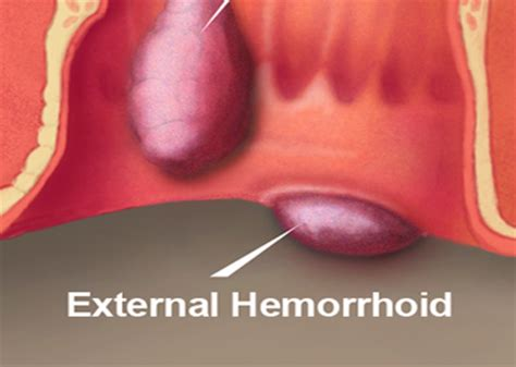 external hemorrhoid pain after hemorrhoid surgery hemorrhoids natural treatment