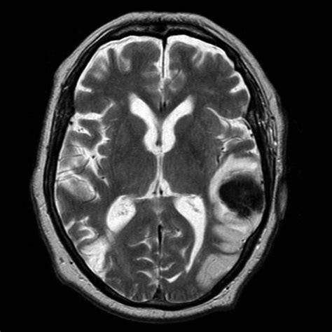 Hemorrhagic Stroke Mri Images