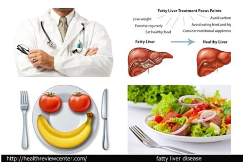liver disease diet page 6 aidendulee