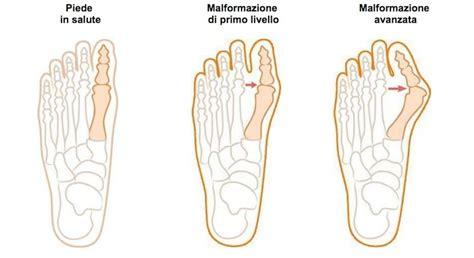 dolore al piede parte interna hai un dolore al piede le possibili cause e la soluzione