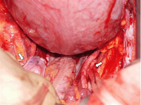 hysterectomy during c section full text modified retrograde cesarean hysterectomy for