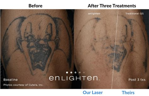 tattoo removal oregon laser removal portland oregon removal
