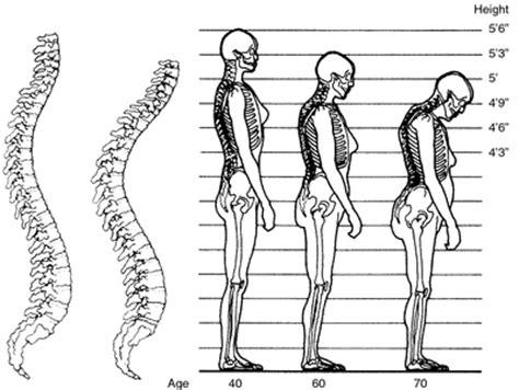 Tiens Kalsium Osteoporosis suplemen peninggi badan tiens kalsium nhcp zinc dan