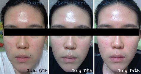Serum Ost updated review ost original vitamin c20 serum