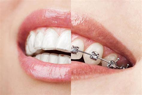 invisalign vs traditional braces traditional braces vs invisalign 174 new york ny