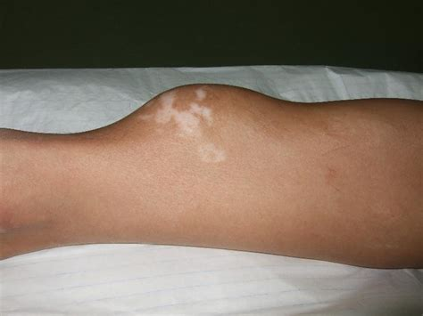 growth on s leg a football injury organising haematoma mimicking as a leg cancerous tumour hc