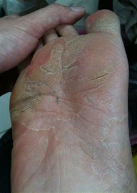 how to get athletes foot out of shoes how do you get athletes foot out of shoes 28 images