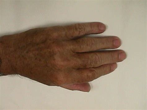dupuytren s palmar fasciectomy and removal foreign body