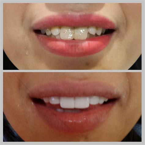 veneer gigi kelinci artis vanya shinta audy dental