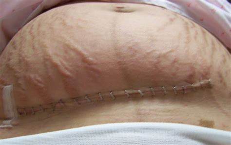 incision after c section the well rounded mama cesarean wound complications a