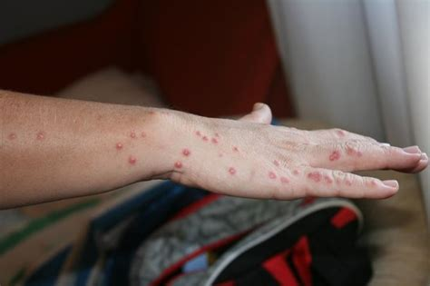 bed bug bites on hands my hand with bed bug bites picture of gran hotel del