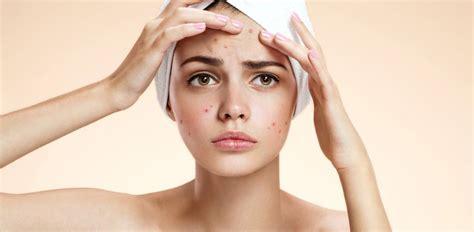 acne alimentazione alimentazione e acne esiste una connessione nutrihealth