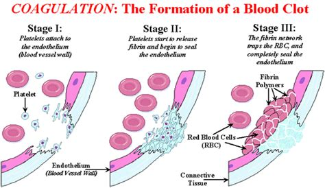 mechanism of blood clotting flowchart symptoms and signs that you are a blood clot