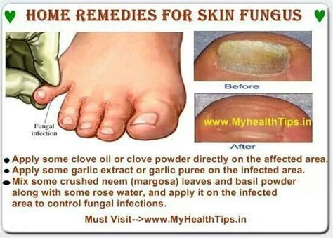 Home Remedies For Healthy Skin by Home Remedies For Skin Fungus Health And