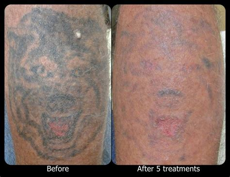 vanish tattoo removal 53 best vanish laser removal progression pictures