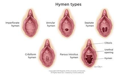 different types of mature vigina hyemen tiny russian girls topless panties around knees
