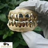 Gold Teeth Grillz | 2560 x 2560 jpeg 1303kB