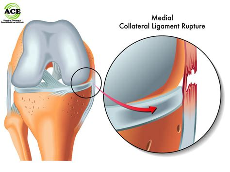 collaterale interno medial collateral ligament mcl knee injuries ace