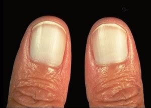 White Nail Beds by 21 Finger Abnormalities And What Important Things They