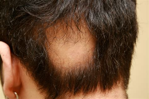 alopecia hair loss in women alopecia