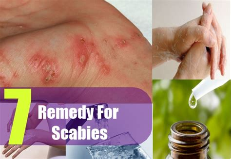 7 home remedies for scabies treatments cure