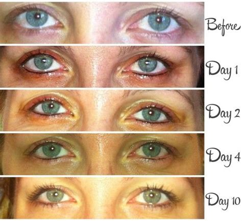 eyeliner tattoo before and after 5 things to consider before getting permanent makeup
