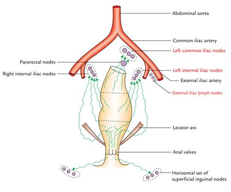Internal Iliac Lymph Nodes