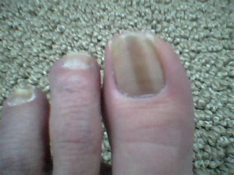 dark line on fingernail toenails quotes like success