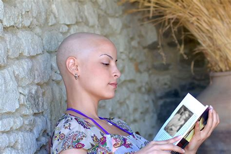 hair loss after chemotherapy image gallery hair loss chemotherapy