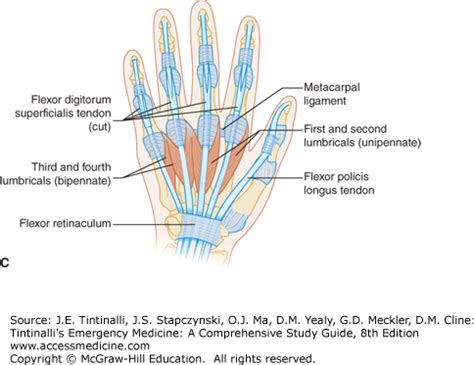 c section muscle damage injuries to the hand and digits tintinalli s emergency