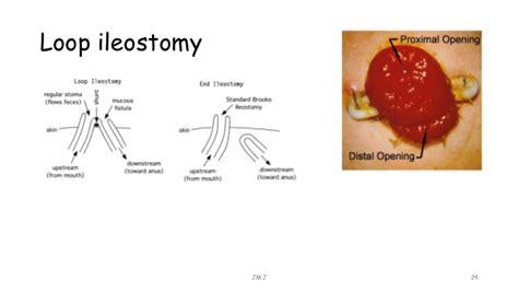 ileostomy diagram stoma