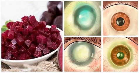 My Eyesight Improved After Detox combination of 3 foods to improve your vision and cleanse
