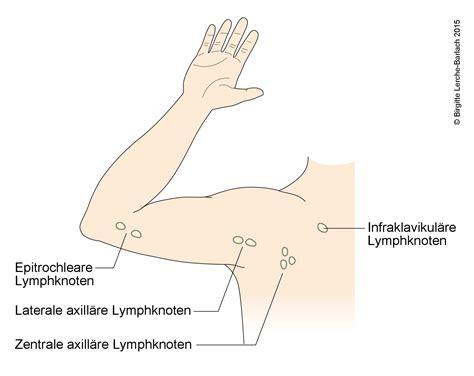 katharina die große pferd gestell magen darm grippe infekt